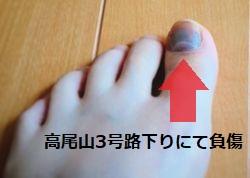 高尾山にて足の爪を負傷